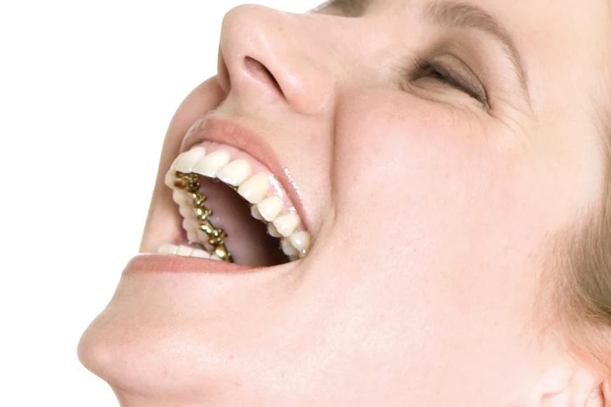 Lingual Ortodonti, Samsun Lingual Ortodonti, Samsun Ortodonti, Samsun Ortodonti Uzmanı, Samsun Ortodontist, Samsun Ortodonti Fiyatları, Samsun Ortodonti Tavsiye, Samsun Görünmez Diş Teli Tavsiye, Samsun Ortodonti Uzmanları, Samsun Şeffaf Diş Teli, Samsun Görünmez Diş Teli, Samsun Çocuk Ortodonti, Samsun Çocuk Ortodonti Uzmanı, Samsun Diş Teli, Samsun Diş Teli Fiyatları, Samsun Şeffaf Plak, Samsun Şeffaf Braketler, Samsun Lingual Braketler