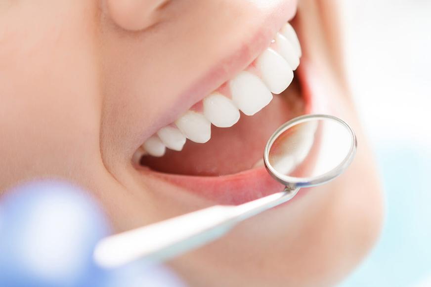 Samsun Diş Beyazlatma