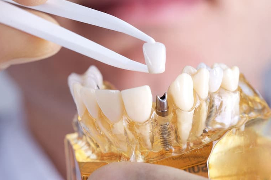 Samsun İmplant, Samsun İmplant Fiyatları, Samsun İmplant Fiyatı, Samsun Diş İmplant, Samsun İmplant Tedavisi
